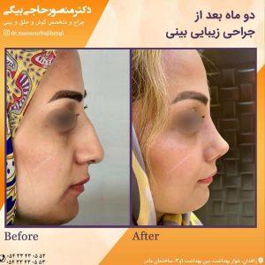 جراحی بینی در زاهدان