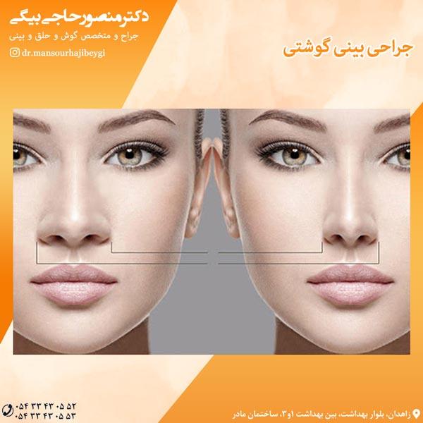 جراحی بینی گوشتی