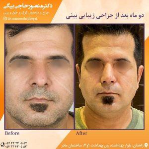 جراح بینی در زاهدان