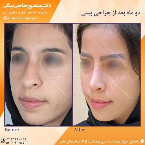 جراحی بینی در زاهدان 37