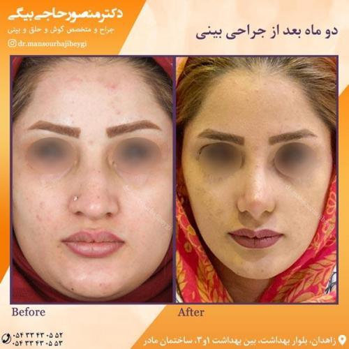 جراحی بینی در زاهدان 40