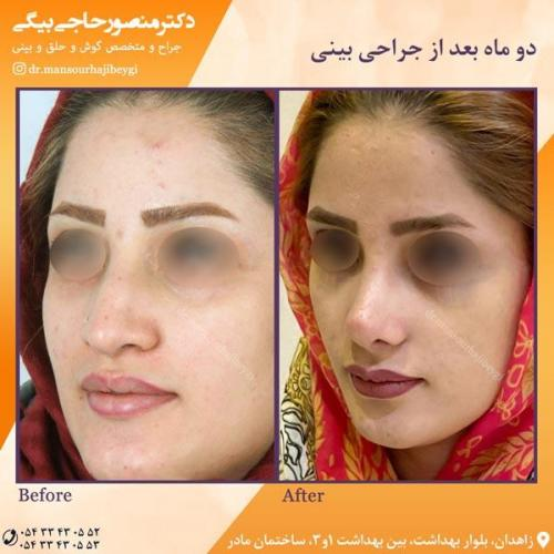 جراحی بینی در زاهدان 41