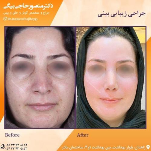 جراحی بینی در زاهدان 48