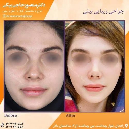 جراحی بینی در زاهدان 55
